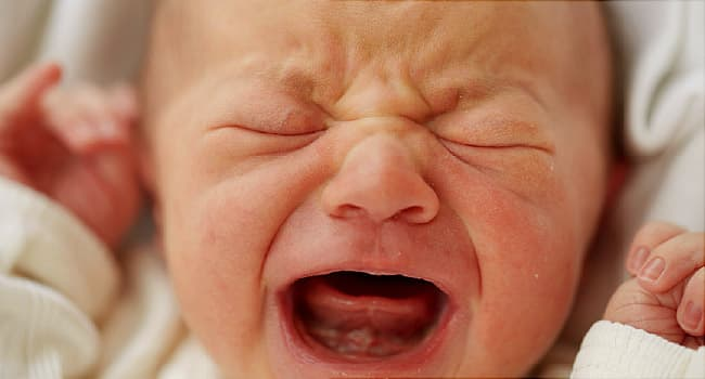 Baby Colic Signs and Symptoms