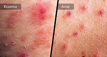 eczema and acne diptych