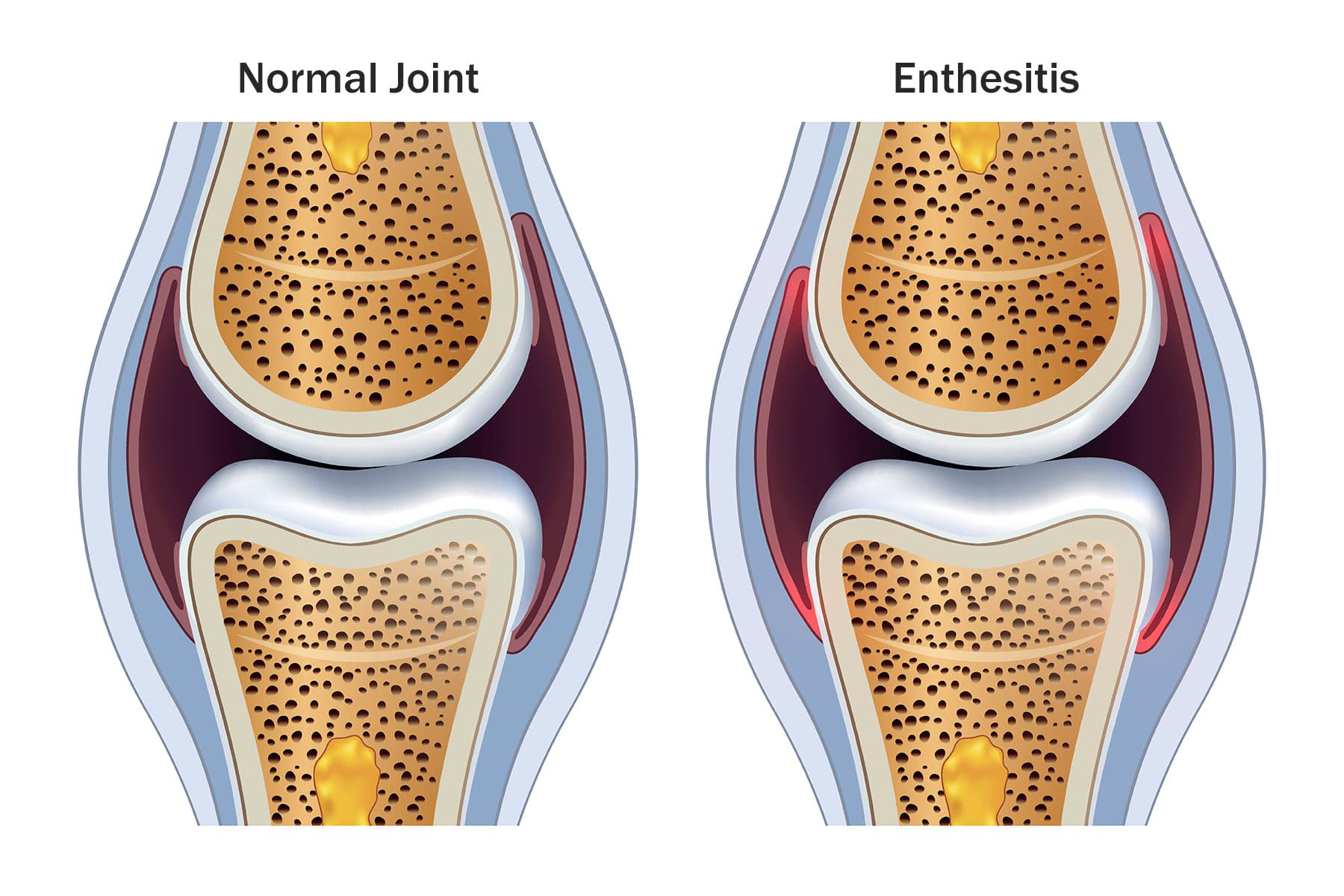 Enthesopathy And Enthesitis Symptoms Diagnosis Treatment