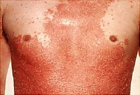 erythrodermic psoriasis on male torso
