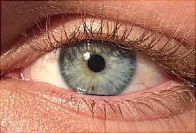 Eye Freckles: Get the Facts About Eye Nevi