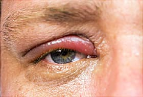 96c228c3ee8 Swollen Eyelid: Inflammation, Infections, Causes, & Treatment