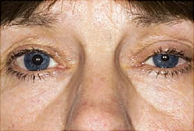 horners syndrome drooping eyelid