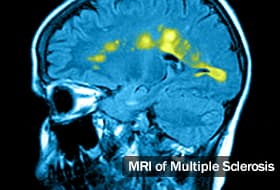 Multiple Sclerosis (MS) Diagnosis: How Doctors Test for MS