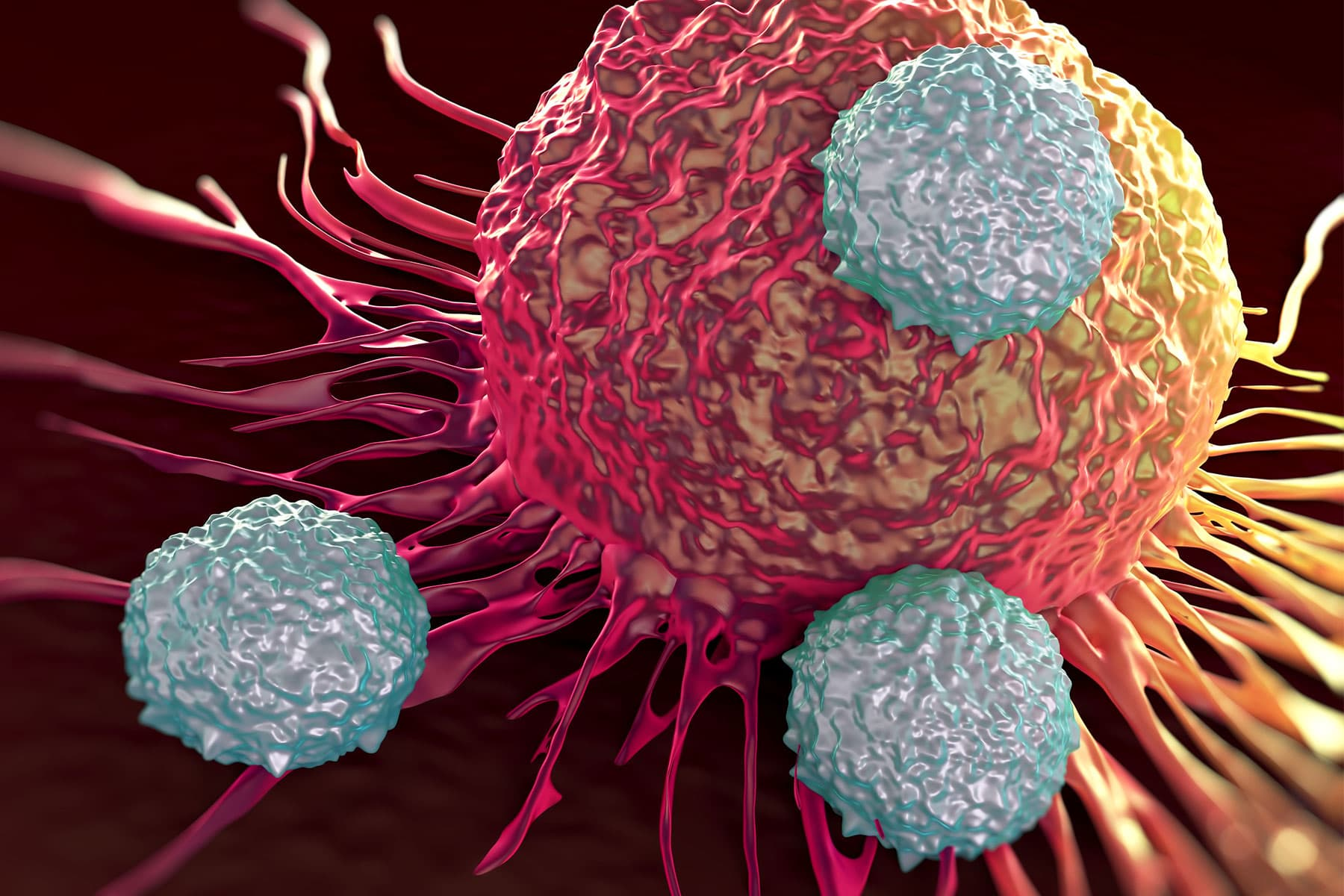 Immunotherapy May Help Fight Some Advanced Colon Cancers