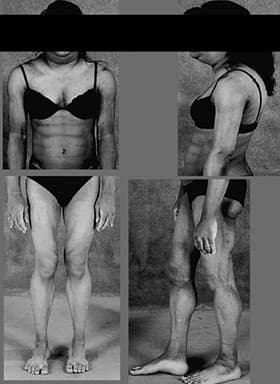 inherited lipodystrophy