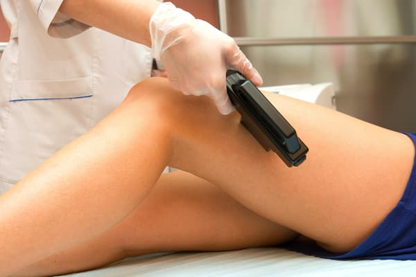 photo of laser hair removal