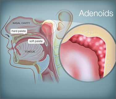 Adenoiditis: Causes, Symptoms, and Adenoidectomy