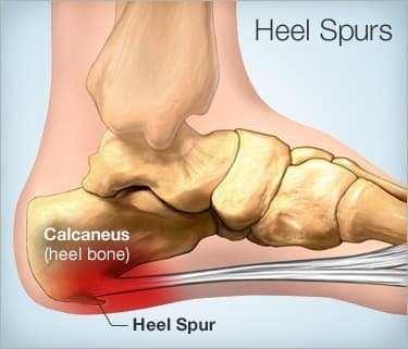 f8e7c3fbb8 Although heel spurs are often painless, they can cause heel pain. They are  frequently associated with plantar fasciitis, a painful inflammation of the  ...