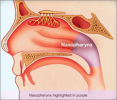 Nasopharyngeal Cancer Symptoms Causes And Treatment