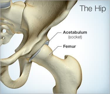 Why Does My Hip Hurt? 8 Causes of Hip Pain & Problems: Treatment Options