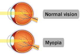 Myopia (Nearsightedness) - Causes, Treatment and Symptoms