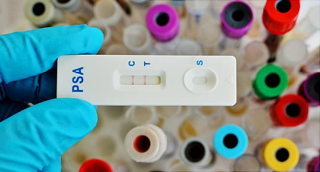 USPSTF upgrades PSA test recommendation for prostate cancer screening