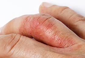 8 Symptoms And Signs Of Psoriatic Arthritis