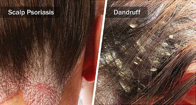 Image result for dandruff""