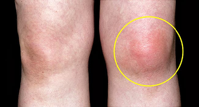 Signs Your Chronic Gout Is Getting Worse