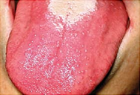 strawberry tongue close up