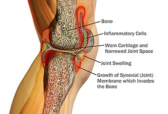inflamed knee joint anatomy