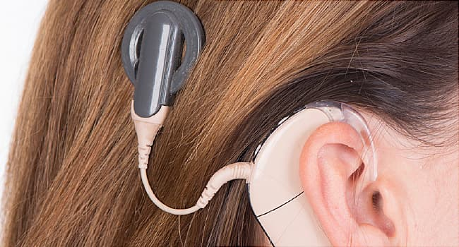 Cochlear Implants for Hearing Loss: How They Work, Benefits