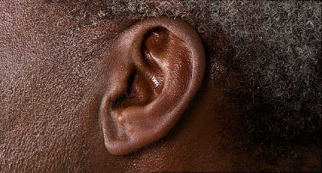 Tinnitus (Ringing in the Ears) Causes and Definition