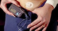 insulin pump close up