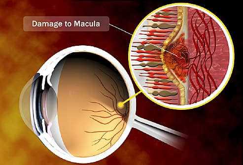 How Can I Keep My Eyes Healthy If I Have Macular Degeneration?