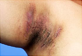 hidradenitis suppurativa in armpit