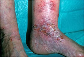leg with venous stasis dermatitus