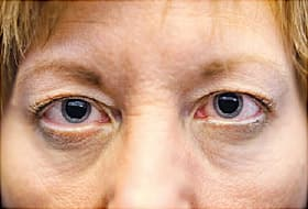 woman with dilated pupils