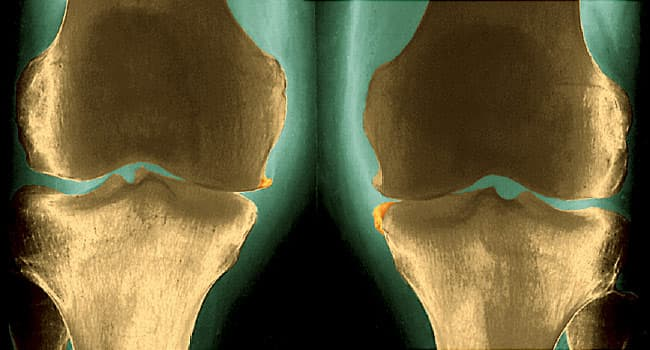 OA Knee Replacement: Before and After Pictures