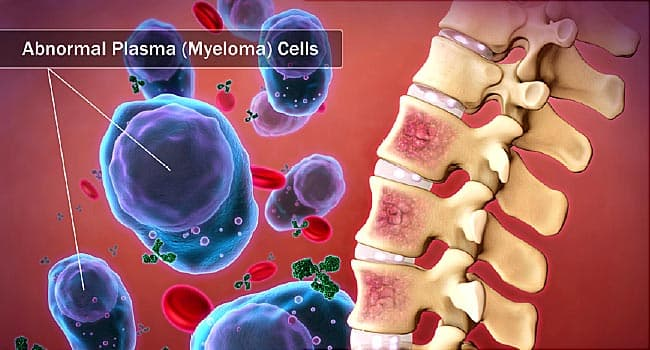 Multiple Myeloma and Diabetes