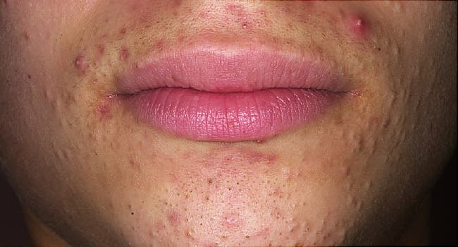 Pictures Different Types Of Acne How To Treat Them