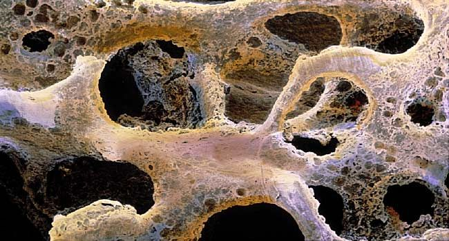 Pictures Of Bone Metastasis When Cancer Spreads To Your Bones