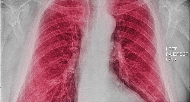 Origins of Adult Killer COPD May Lie in Childhood