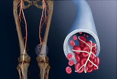 deep vein thrombosis illustration
