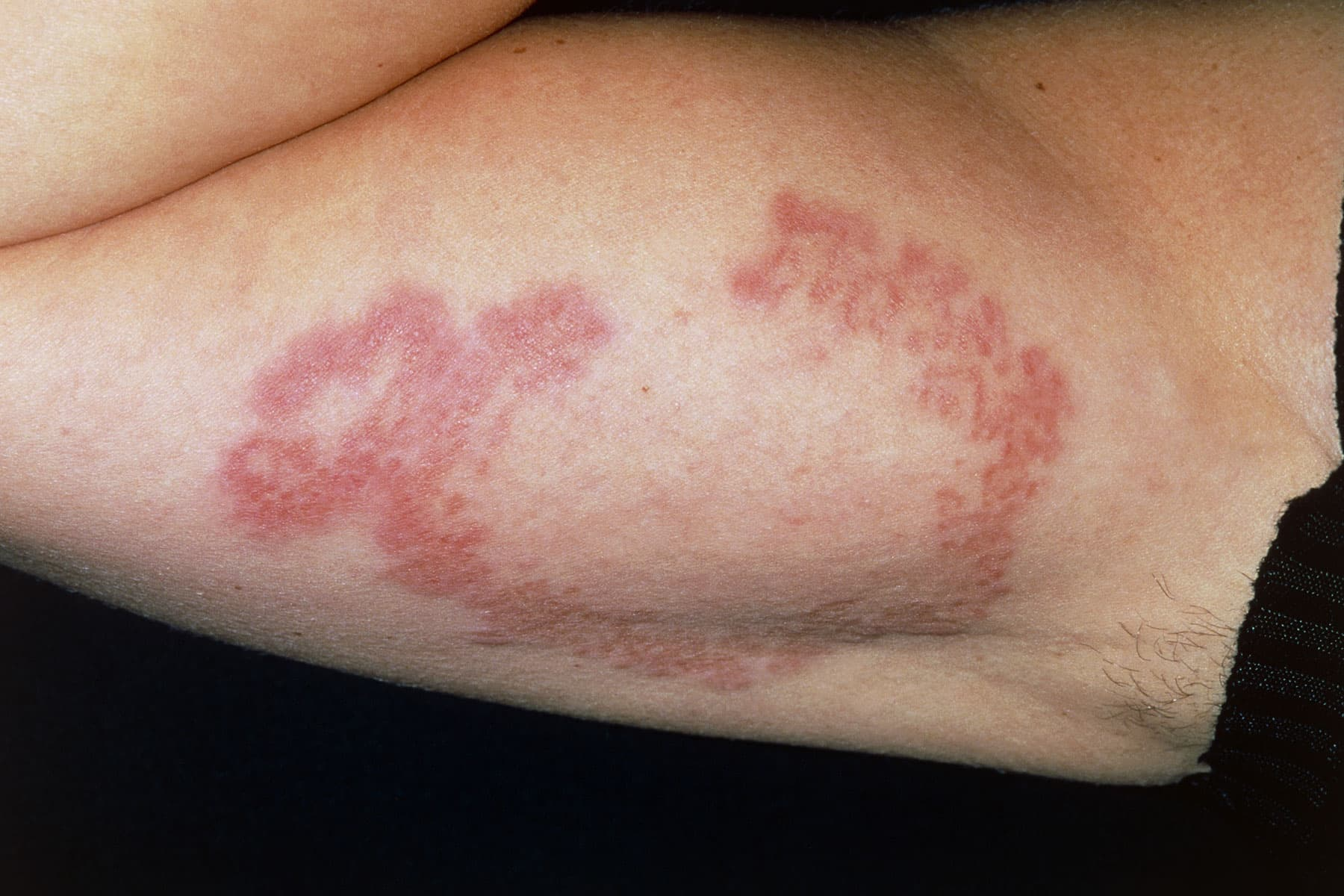Pictures Of Skin Problems Linked To Diabetes
