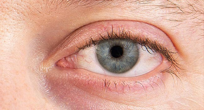 Pictures: Dry Eyes and What You Can Do About Them