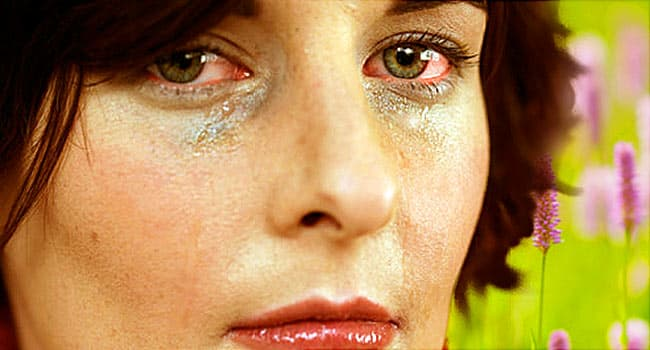 Eye Allergies Symptoms Triggers Treatments