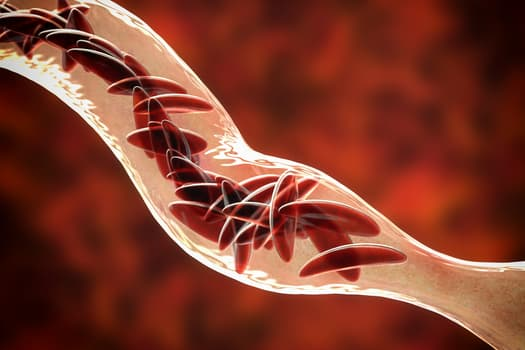 photo of sickle cell disease
