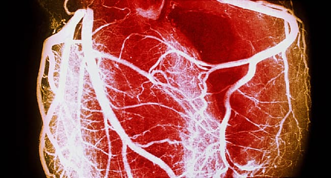 650x350_heart_disease_overview_slideshow