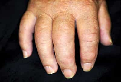 Psoriatic Arthritis Health Center Webmd