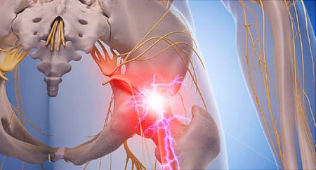 Sciatica Pictures: Symptoms, Causes, and Treatments