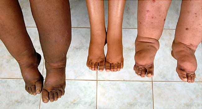 Lymphedema: Pictures, Symptoms, Causes, and Treatment