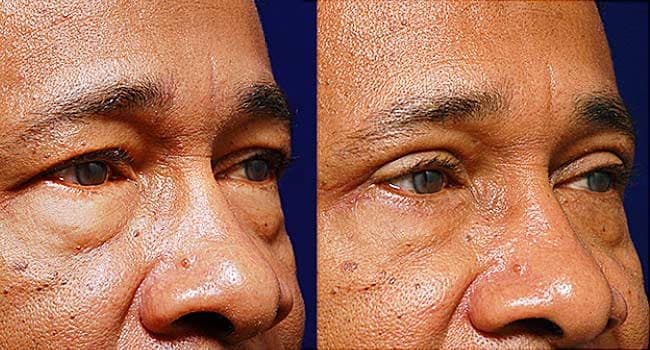 Plastic Surgery for Men Surges – WebMD