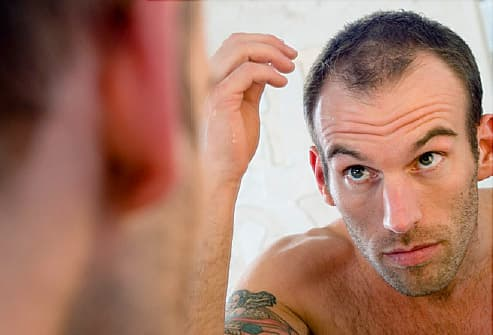 Men S Hair Loss Male Pattern Baldness And Other Causes