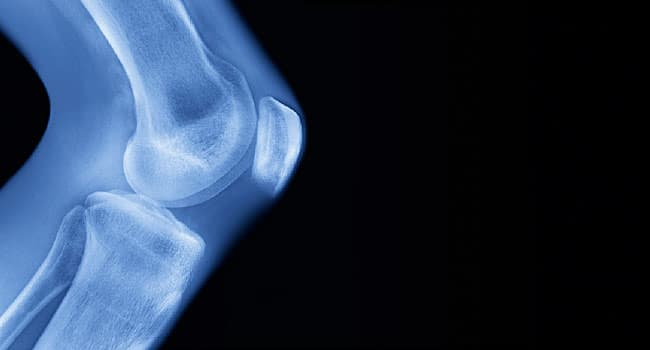 Stem Cells for Knees: Promising Treatment or Hoax?