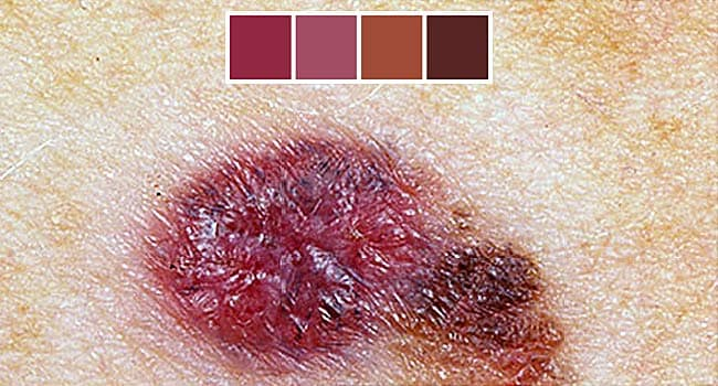 Skin Cancer Photos What Skin Cancer Precancerous Lesions Look Like
