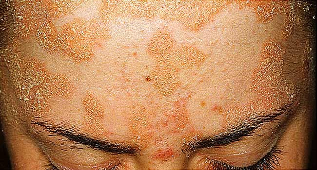 Pictures of Plaque Psoriasis, Pustular Psoriasis, and Other