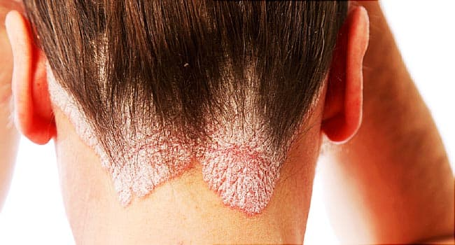 Scalp Psoriasis Pictures Symptoms Causes Treatment