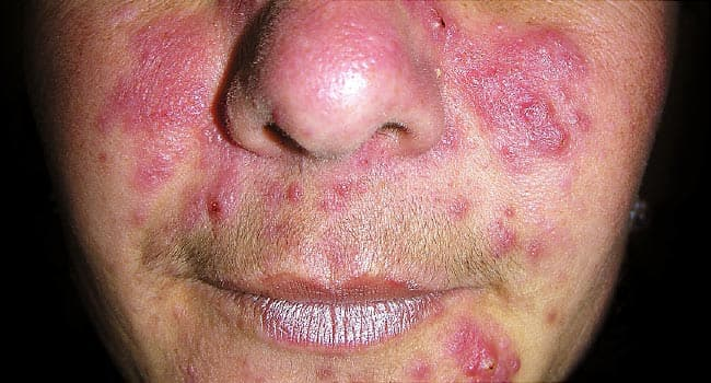 Rosacea Types Symptoms And Treatment